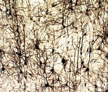 Resultado de imagen de Tinción de Golgi