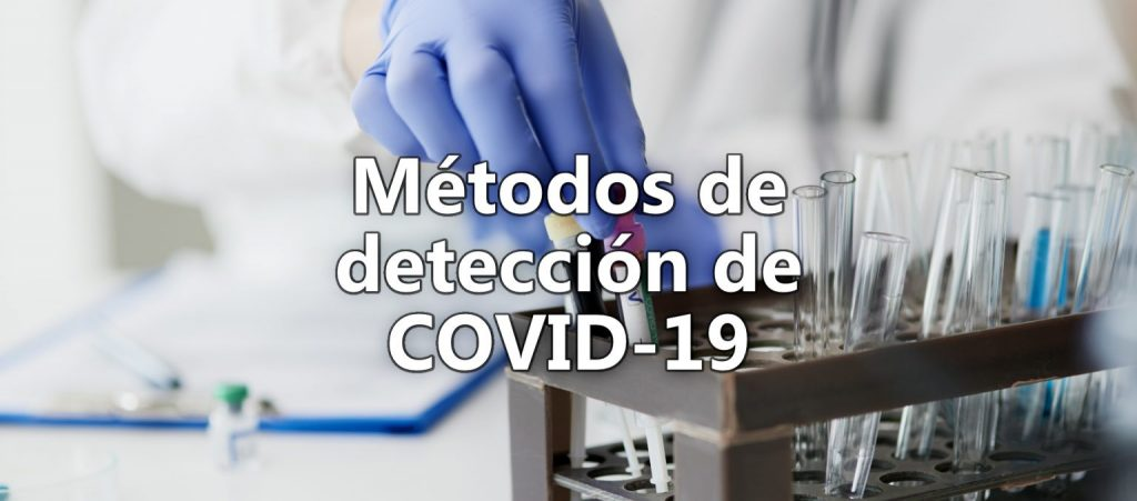 Metodos de deteccion de Covid-19 desk at laboratory with test tubes coronavirus